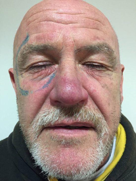 Британец два года избавлялся от тату на лице