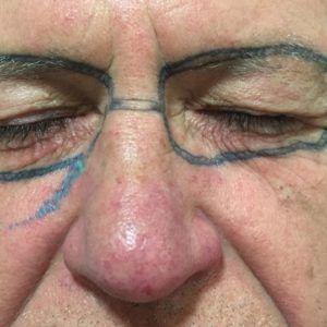 Друзья сделали тату на лице, пока я спал. Люблю их