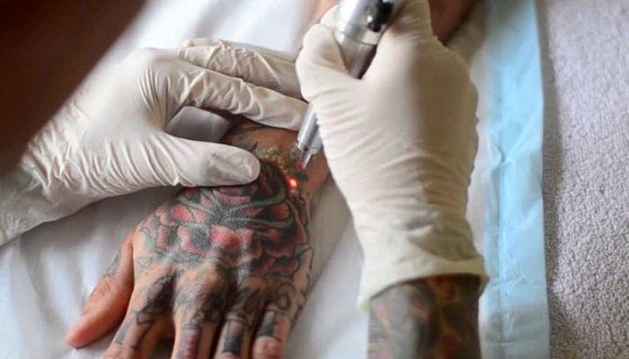 Удаление татуировки: как это делается и насколько эффективно?