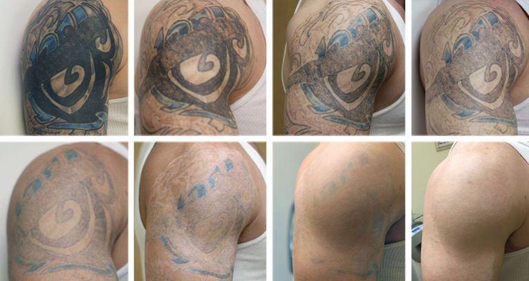 Удаление татуировки лазером фото до и после процедур