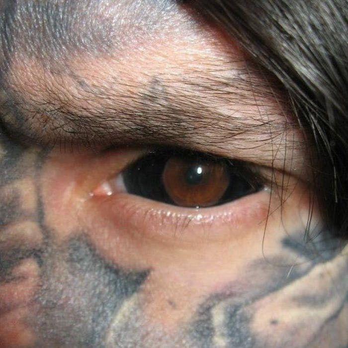 Черная татуировка на глазном яблоке