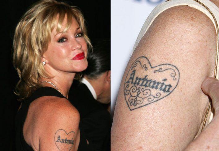 массового выводят татуировки